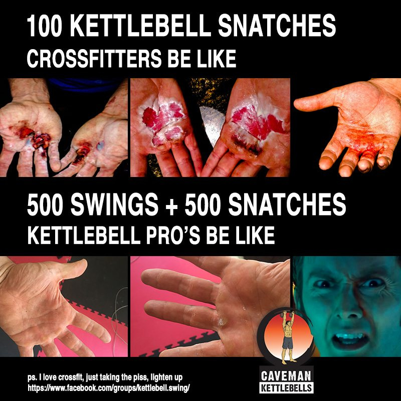 Kettlebell Snatches ripped calluses