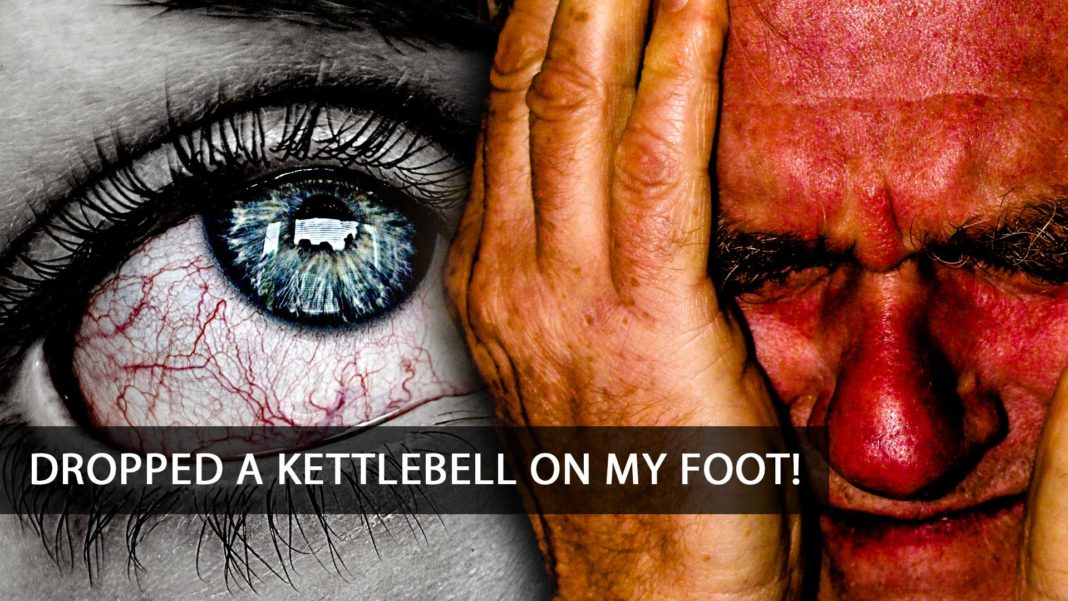 Dropped a kettlebell on my foot