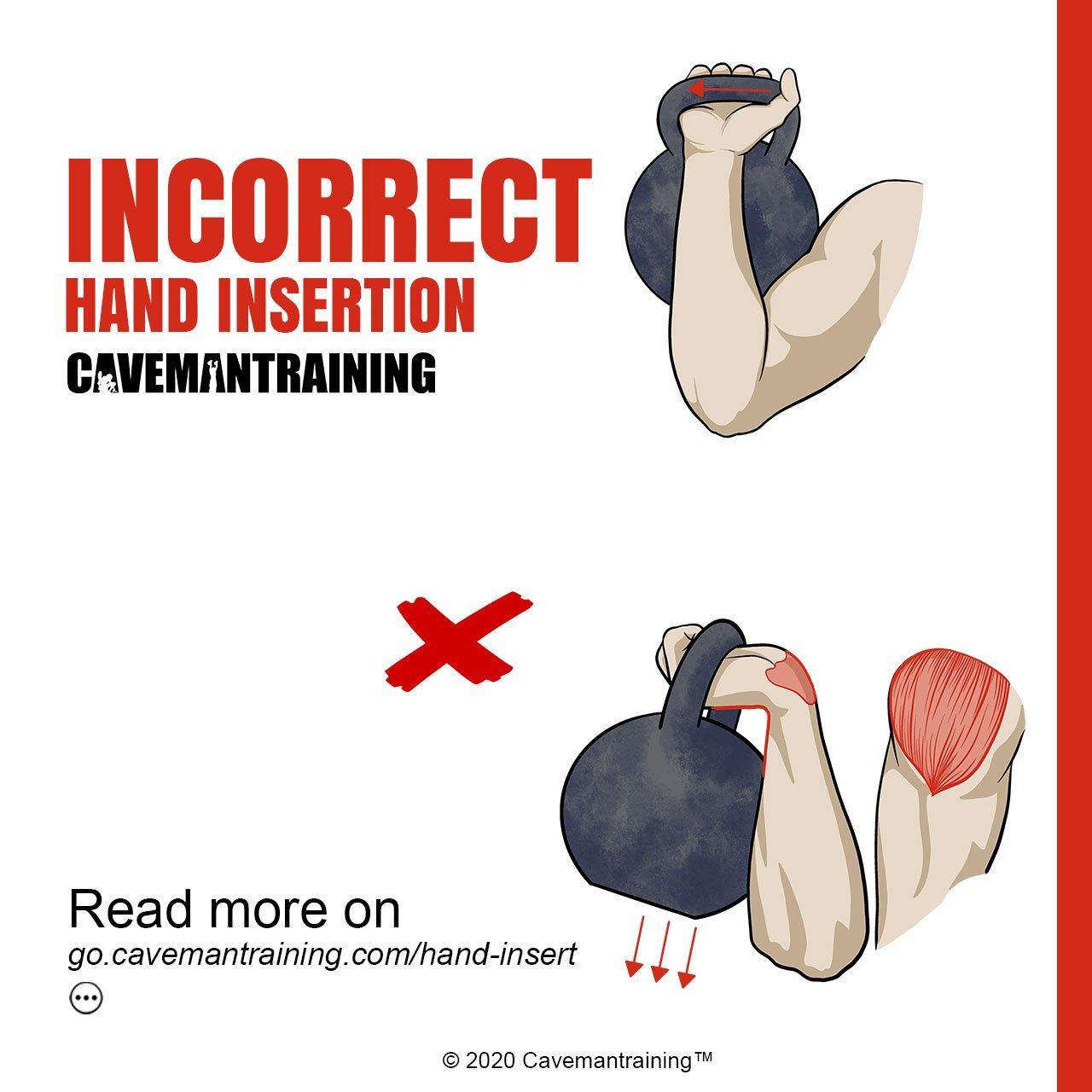 Incorrect hand insertion