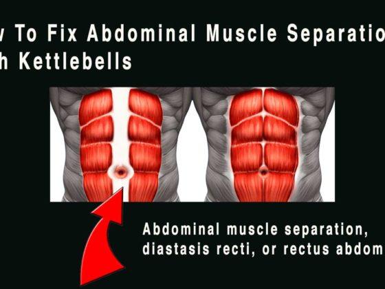 Abdominal muscle separation, diastasis recti, or rectus abdominis diastasis